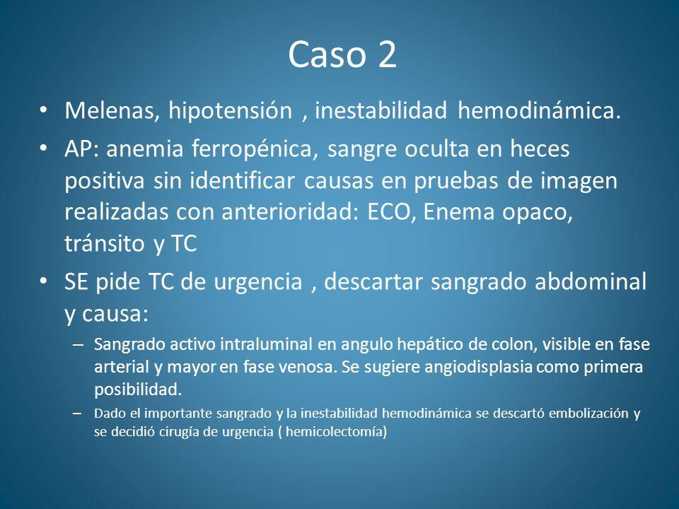 Caso 2 Melenas, hipotensión, inestabilidad hemodinámica. AP: anemia ferropénica, sangre oculta en heces positiva sin identificar causas en pruebas de