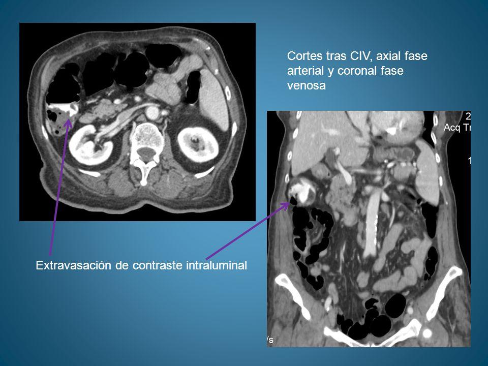 Cortes tras CIV, axial fase arterial y coronal fase venosa Extravasación de contraste intraluminal