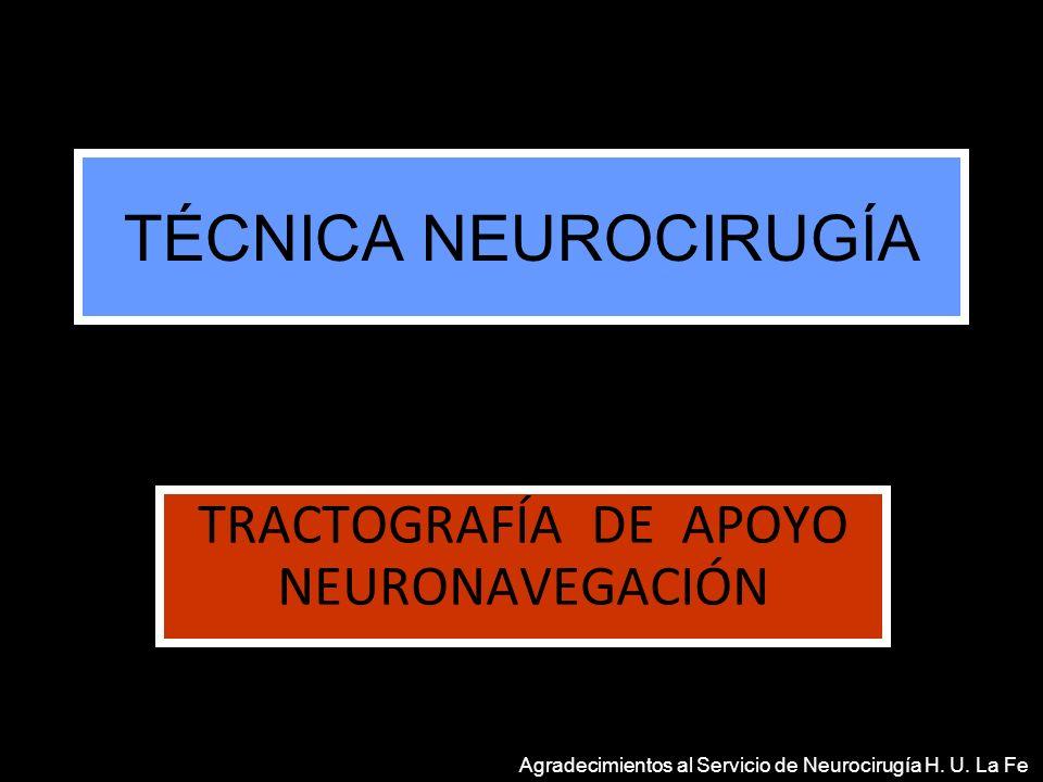 TÉCNICA NEUROCIRUGÍA TRACTOGRAFÍA DE APOYO NEURONAVEGACIÓN Agradecimientos al Servicio de Neurocirugía H. U. La Fe