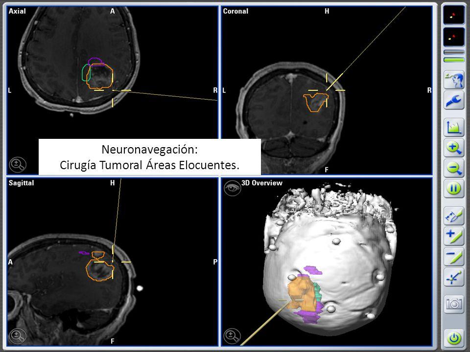 Neuronavegación: Cirugía Tumoral Áreas Elocuentes.