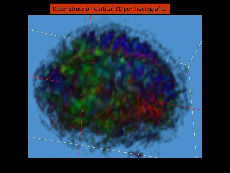 Reconstrucción Cortical 3D por Tractografía.