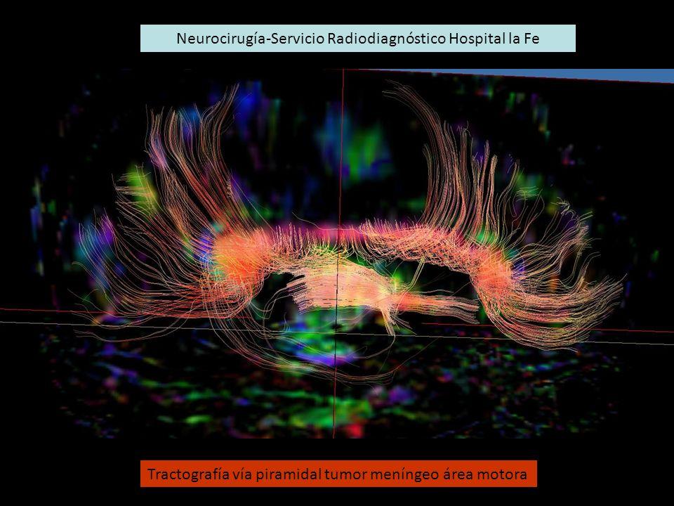 Neurocirugía-Servicio Radiodiagnóstico Hospital la Fe Tractografía vía piramidal tumor meníngeo área motora