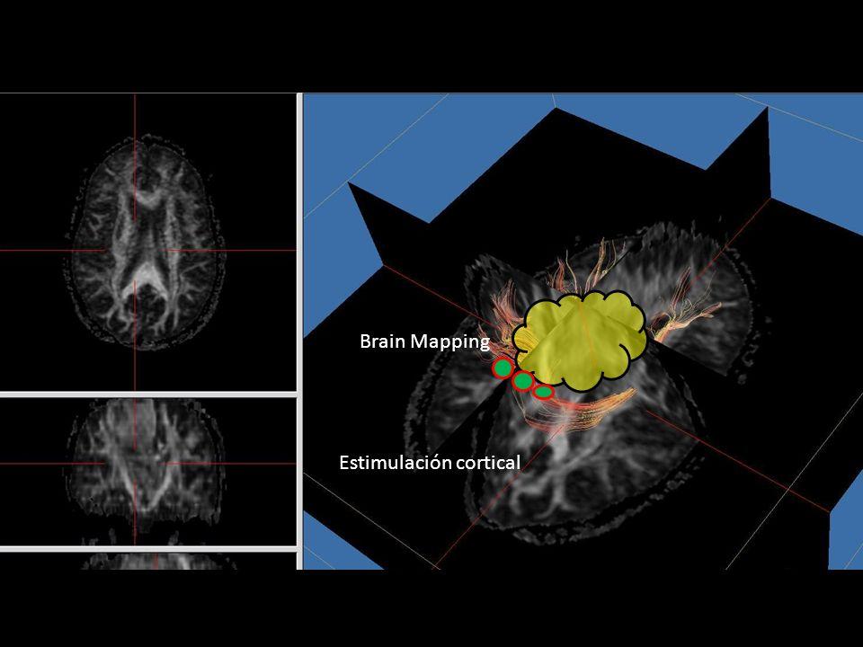 Estimulación cortical Brain Mapping