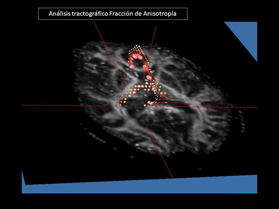 Análisis tractográfico Fracción de Anisotropía