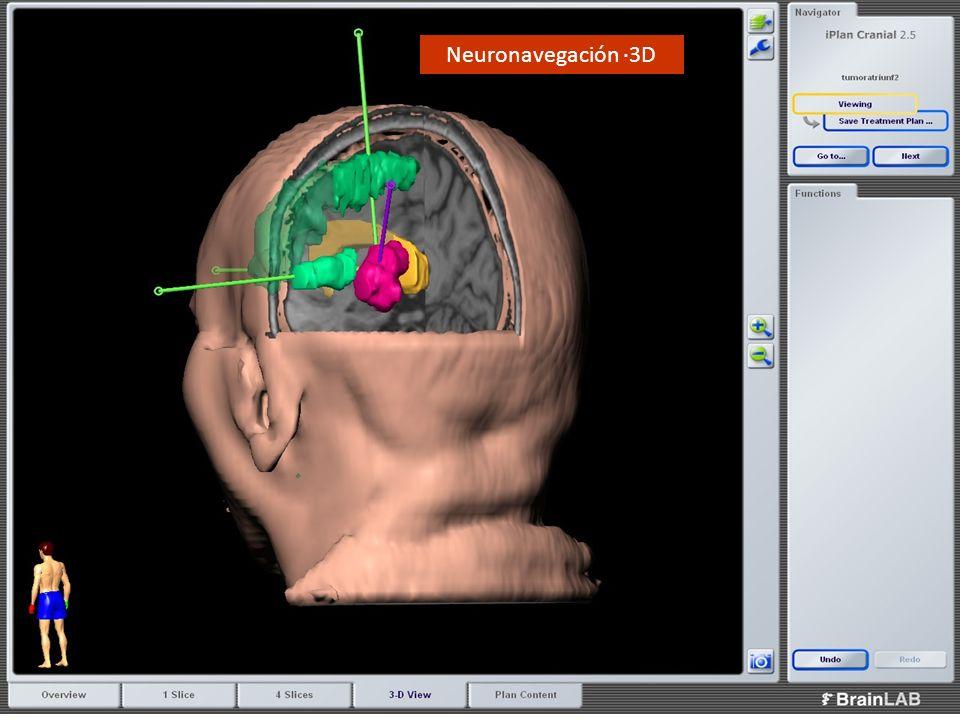 Neuronavegación ·3D