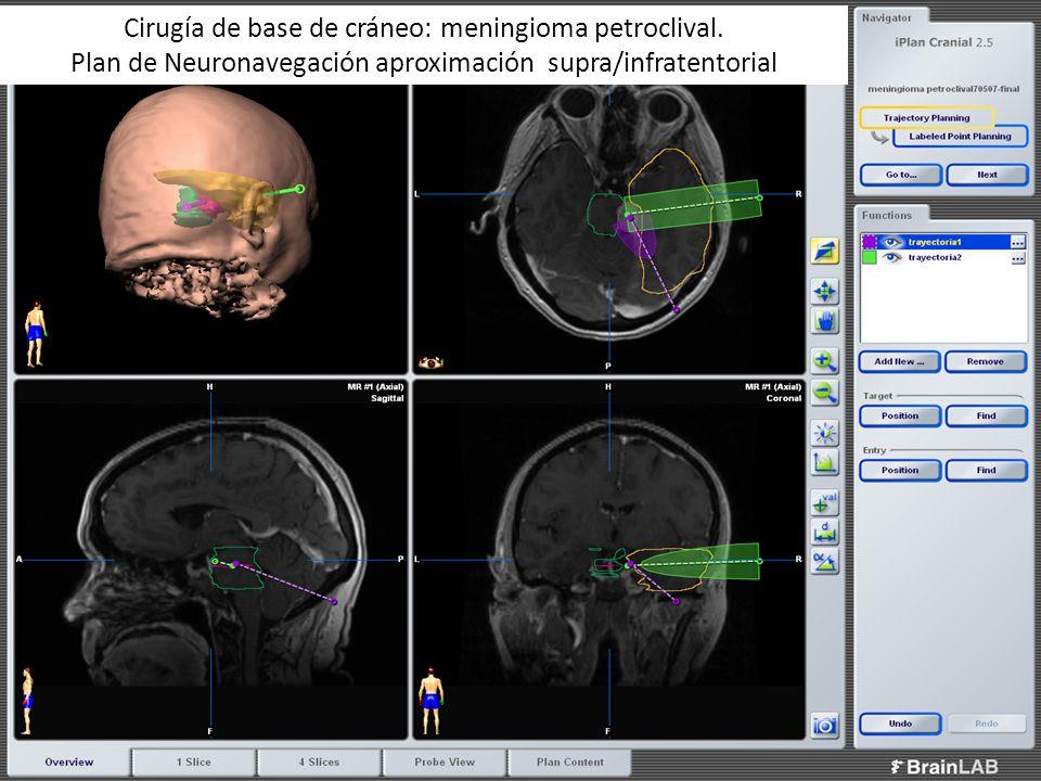 Cirugía de base de cráneo: meningioma petroclival. Plan de Neuronavegación aproximación supra/infratentorial