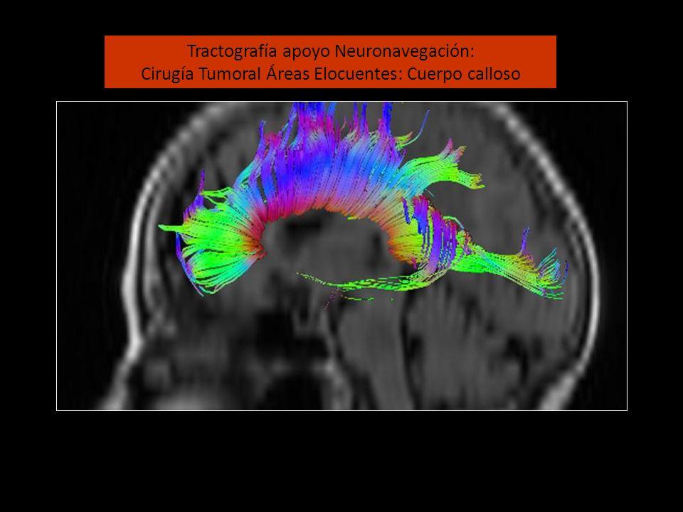 Tractografía apoyo Neuronavegación: Cirugía Tumoral Áreas Elocuentes: Cuerpo calloso