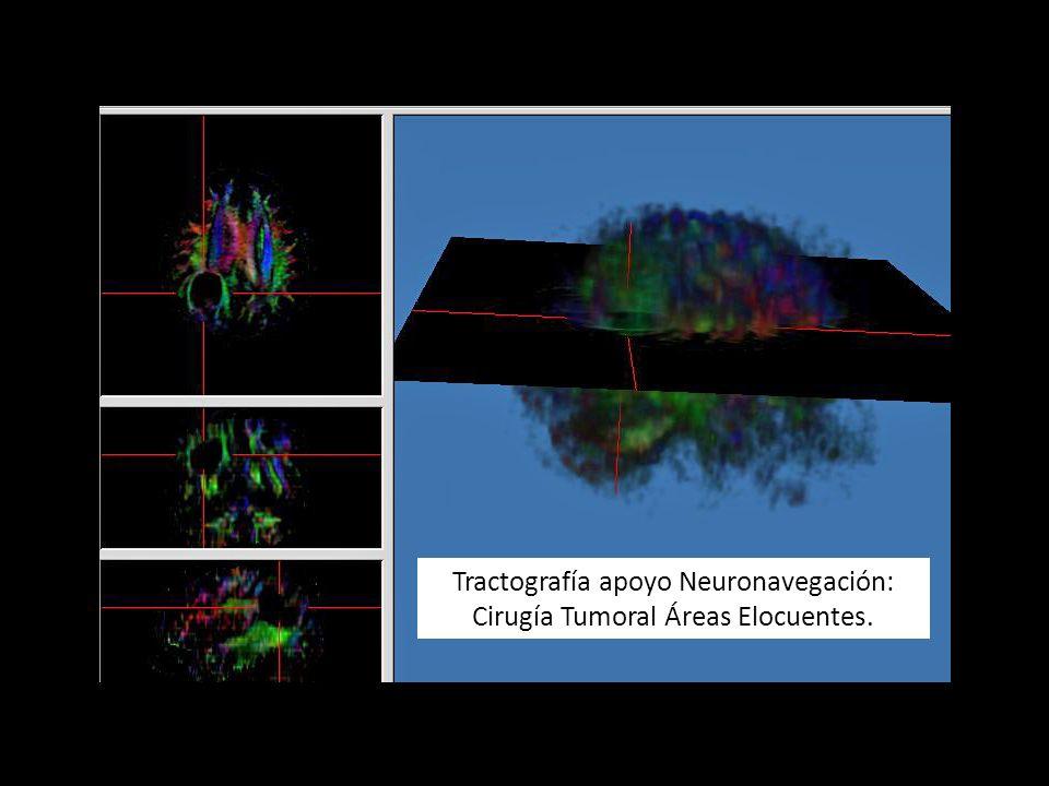 Tractografía apoyo Neuronavegación: Cirugía Tumoral Áreas Elocuentes.