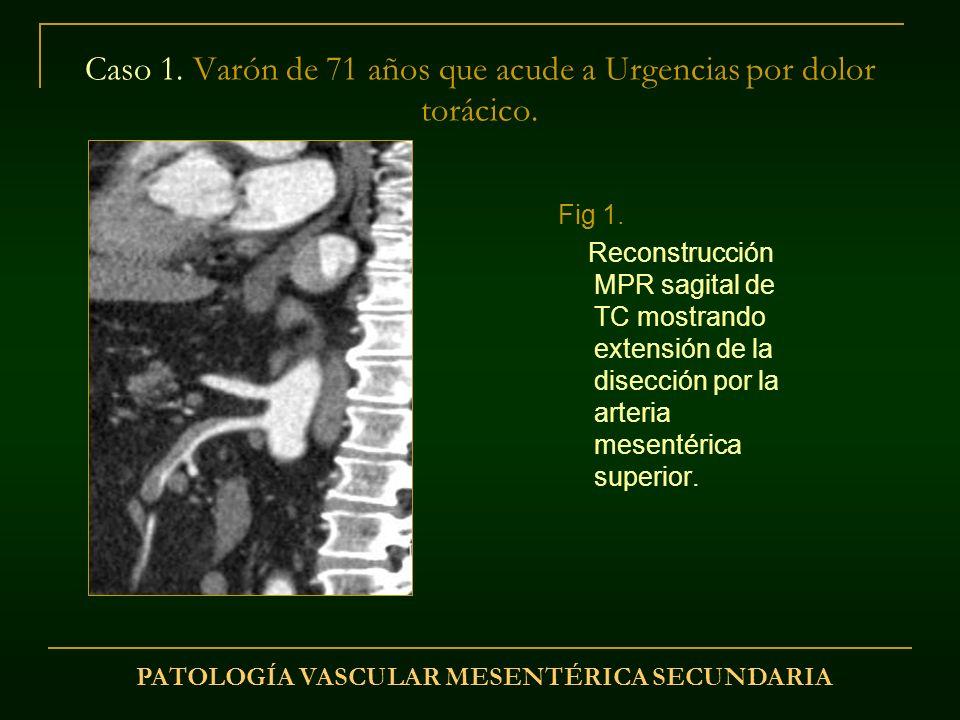 Caso 1. Varón de 71 años que acude a Urgencias por dolor torácico. Fig 1. Reconstrucción MPR sagital de TC mostrando extensión de la disección por la