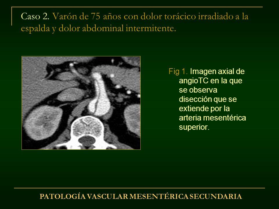 Caso 2. Varón de 75 años con dolor torácico irradiado a la espalda y dolor abdominal intermitente. Fig 1. Imagen axial de angioTC en la que se observa