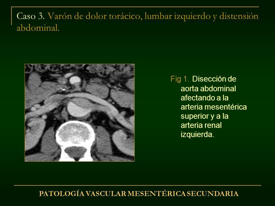 Caso 3. Varón de dolor torácico, lumbar izquierdo y distensión abdominal. Fig 1. Disección de aorta abdominal afectando a la arteria mesentérica super