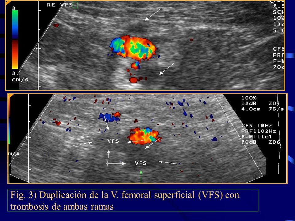 Fig. 3) Duplicación de la V. femoral superficial (VFS) con trombosis de ambas ramas