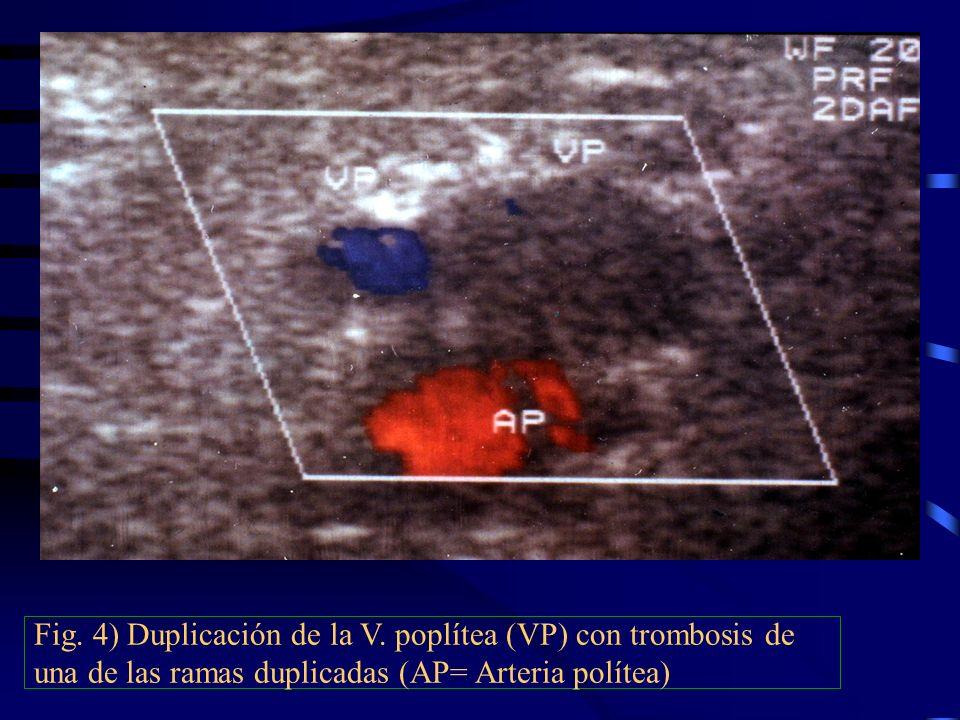 Fig. 4) Duplicación de la V. poplítea (VP) con trombosis de una de las ramas duplicadas (AP= Arteria polítea)