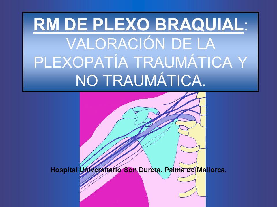 RM DE PLEXO BRAQUIAL : VALORACIÓN DE LA PLEXOPATÍA TRAUMÁTICA Y NO TRAUMÁTICA. Hospital Universitario Son Dureta. Palma de Mallorca.