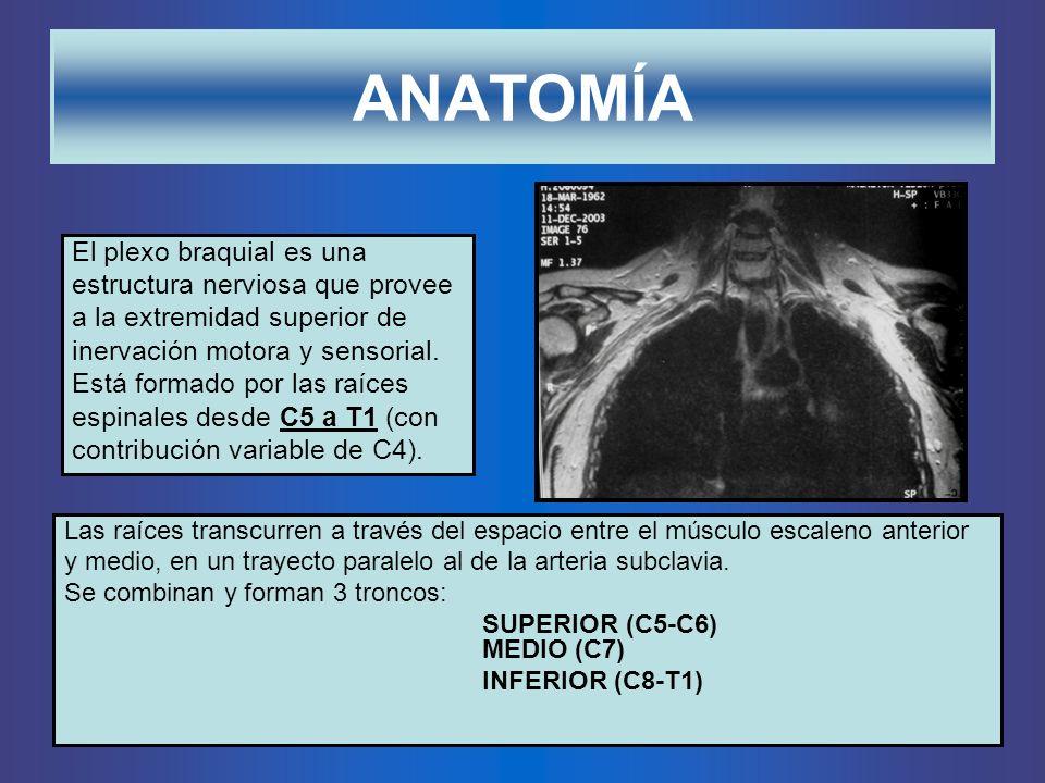 ANATOMÍA El plexo braquial es una estructura nerviosa que provee a la extremidad superior de inervación motora y sensorial. Está formado por las raíce