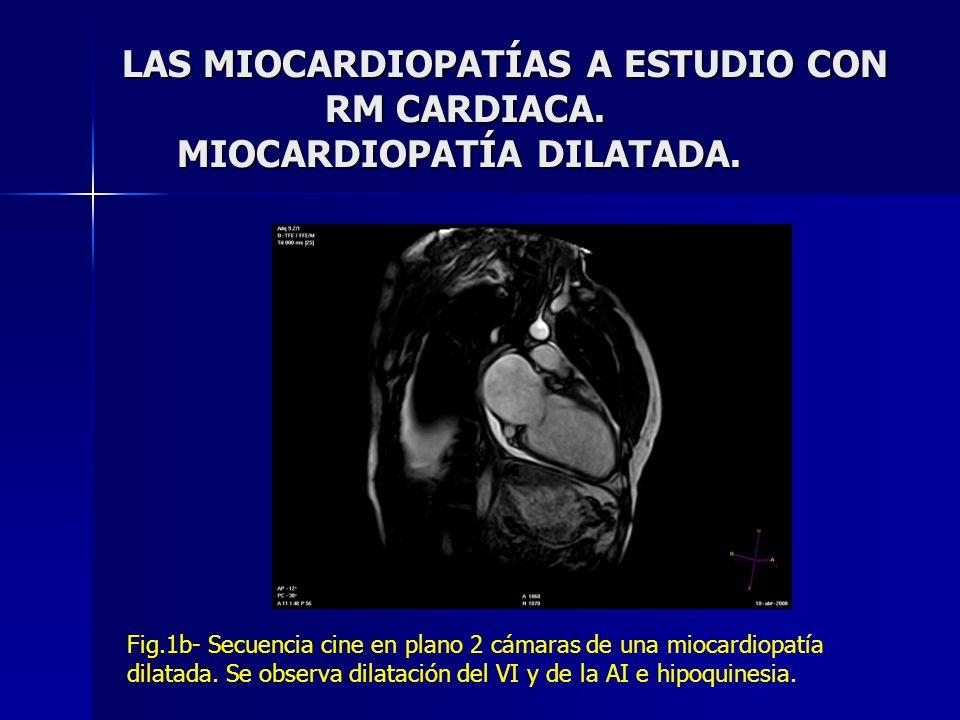 LAS MIOCARDIOPATÍAS A ESTUDIO CON RM CARDIACA. MIOCARDIOPATÍA DILATADA. Fig.1b- Secuencia cine en plano 2 cámaras de una miocardiopatía dilatada. Se o