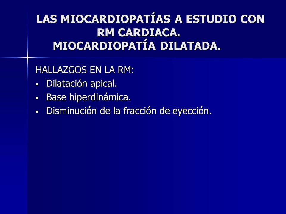 LAS MIOCARDIOPATÍAS A ESTUDIO CON RM CARDIACA. MIOCARDIOPATÍA DILATADA. HALLAZGOS EN LA RM: Dilatación apical. Dilatación apical. Base hiperdinámica.