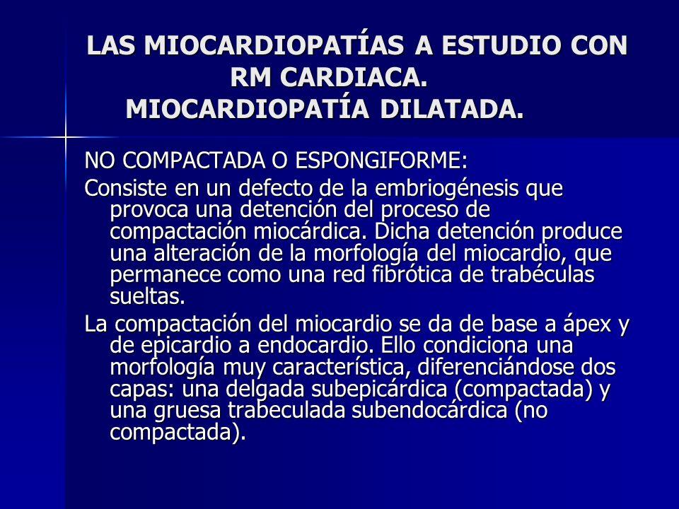 LAS MIOCARDIOPATÍAS A ESTUDIO CON RM CARDIACA. MIOCARDIOPATÍA DILATADA. NO COMPACTADA O ESPONGIFORME: Consiste en un defecto de la embriogénesis que p