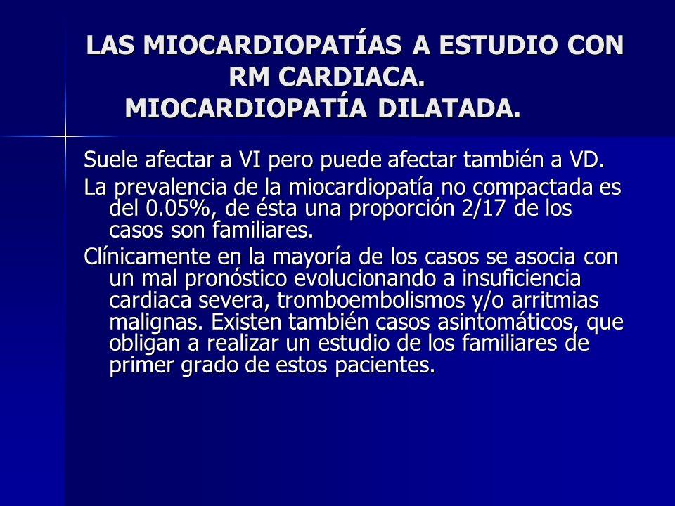 LAS MIOCARDIOPATÍAS A ESTUDIO CON RM CARDIACA. MIOCARDIOPATÍA DILATADA. Suele afectar a VI pero puede afectar también a VD. La prevalencia de la mioca