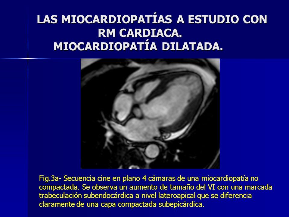LAS MIOCARDIOPATÍAS A ESTUDIO CON RM CARDIACA. MIOCARDIOPATÍA DILATADA. Fig.3a- Secuencia cine en plano 4 cámaras de una miocardiopatía no compactada.