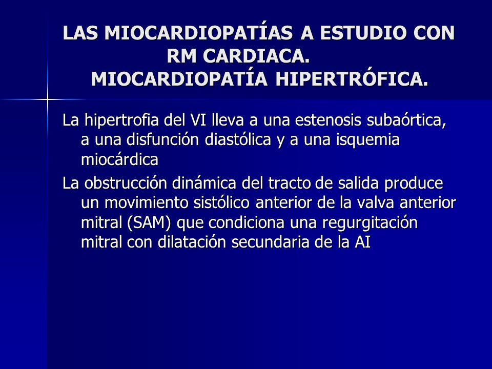 LAS MIOCARDIOPATÍAS A ESTUDIO CON RM CARDIACA. MIOCARDIOPATÍA HIPERTRÓFICA. La hipertrofia del VI lleva a una estenosis subaórtica, a una disfunción d