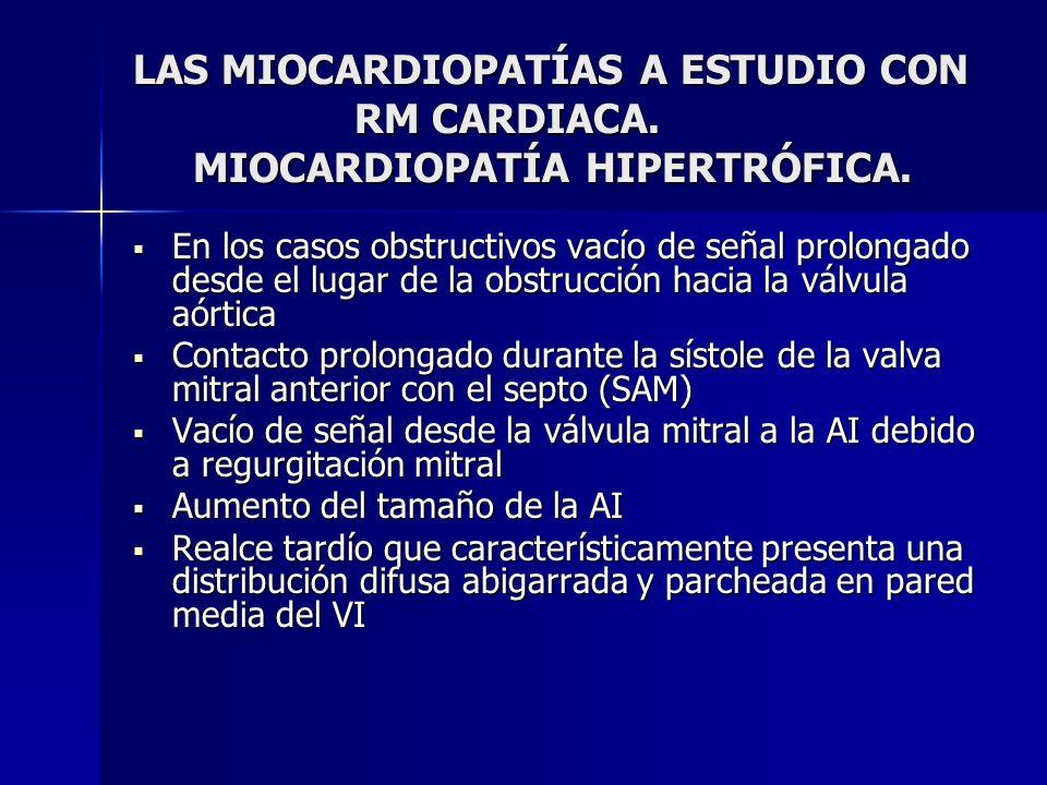 LAS MIOCARDIOPATÍAS A ESTUDIO CON RM CARDIACA. MIOCARDIOPATÍA HIPERTRÓFICA. En los casos obstructivos vacío de señal prolongado desde el lugar de la o