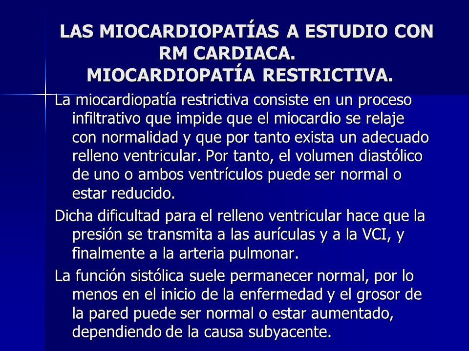 LAS MIOCARDIOPATÍAS A ESTUDIO CON RM CARDIACA. MIOCARDIOPATÍA RESTRICTIVA. La miocardiopatía restrictiva consiste en un proceso infiltrativo que impid