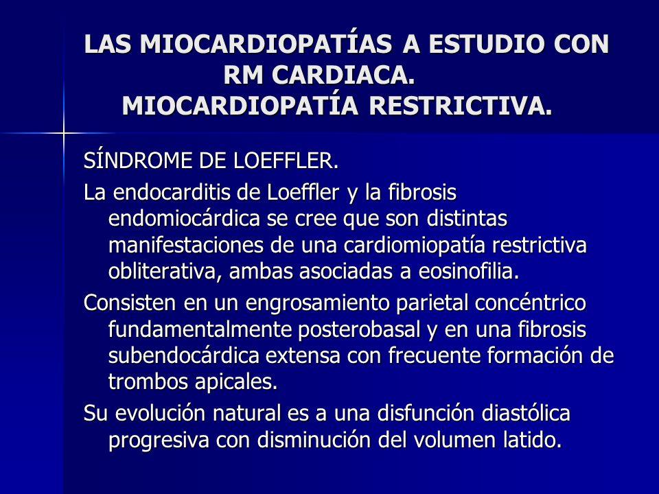 LAS MIOCARDIOPATÍAS A ESTUDIO CON RM CARDIACA. MIOCARDIOPATÍA RESTRICTIVA. SÍNDROME DE LOEFFLER. La endocarditis de Loeffler y la fibrosis endomiocárd