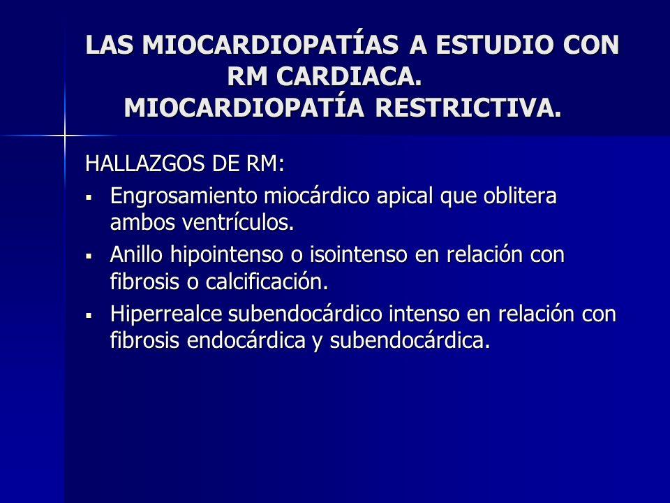 LAS MIOCARDIOPATÍAS A ESTUDIO CON RM CARDIACA. MIOCARDIOPATÍA RESTRICTIVA. HALLAZGOS DE RM: Engrosamiento miocárdico apical que oblitera ambos ventríc