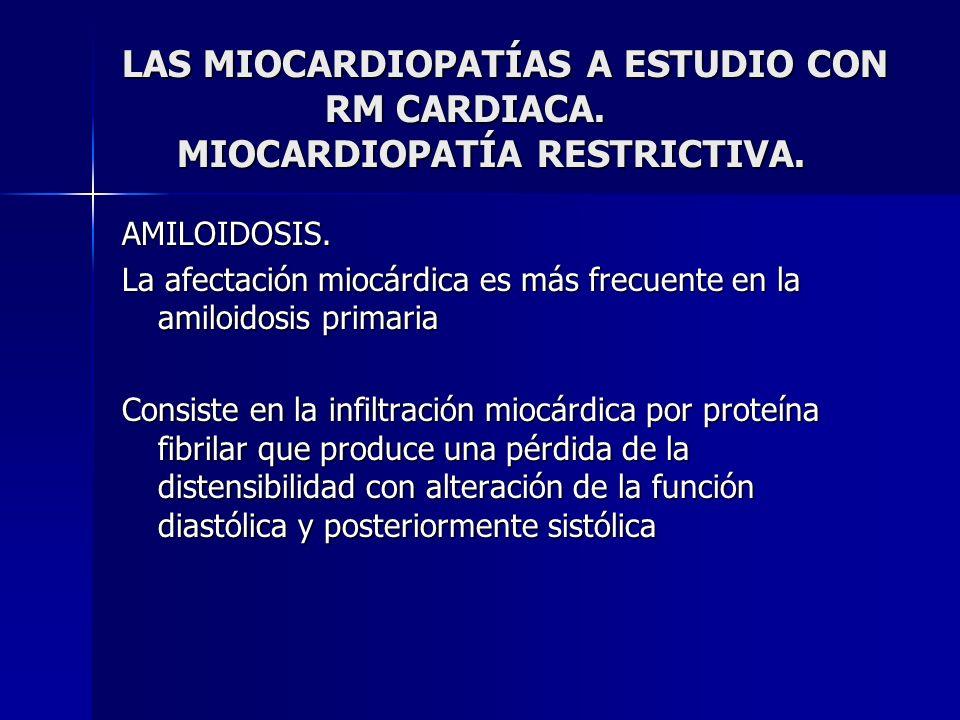 LAS MIOCARDIOPATÍAS A ESTUDIO CON RM CARDIACA. MIOCARDIOPATÍA RESTRICTIVA. AMILOIDOSIS. La afectación miocárdica es más frecuente en la amiloidosis pr