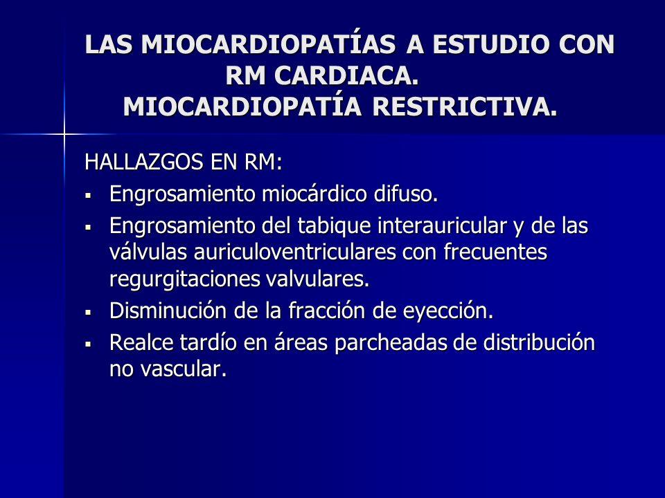 LAS MIOCARDIOPATÍAS A ESTUDIO CON RM CARDIACA. MIOCARDIOPATÍA RESTRICTIVA. HALLAZGOS EN RM: Engrosamiento miocárdico difuso. Engrosamiento miocárdico