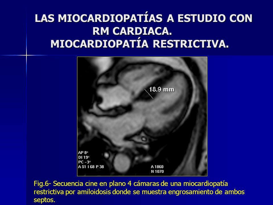 LAS MIOCARDIOPATÍAS A ESTUDIO CON RM CARDIACA. MIOCARDIOPATÍA RESTRICTIVA. Fig.6- Secuencia cine en plano 4 cámaras de una miocardiopatía restrictiva