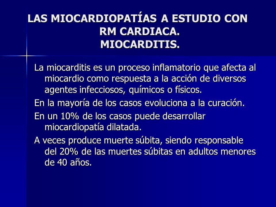 LAS MIOCARDIOPATÍAS A ESTUDIO CON RM CARDIACA. MIOCARDITIS. LAS MIOCARDIOPATÍAS A ESTUDIO CON RM CARDIACA. MIOCARDITIS. La miocarditis es un proceso i