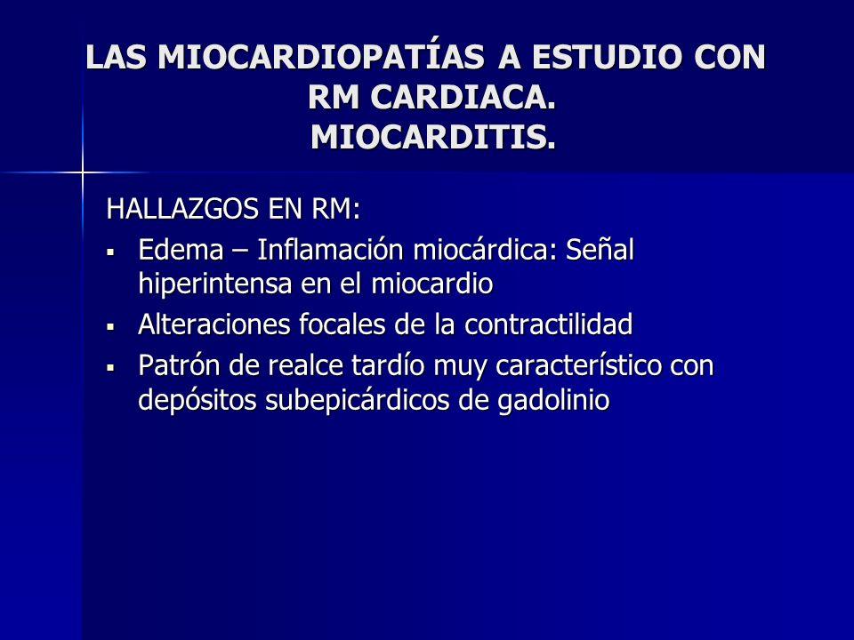 LAS MIOCARDIOPATÍAS A ESTUDIO CON RM CARDIACA. MIOCARDITIS. LAS MIOCARDIOPATÍAS A ESTUDIO CON RM CARDIACA. MIOCARDITIS. HALLAZGOS EN RM: Edema – Infla