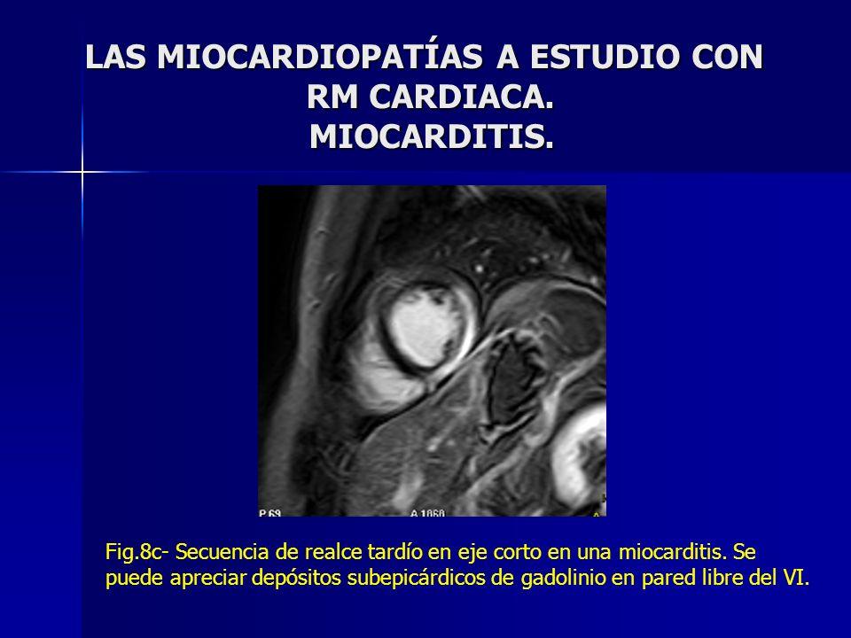 LAS MIOCARDIOPATÍAS A ESTUDIO CON RM CARDIACA. MIOCARDITIS. LAS MIOCARDIOPATÍAS A ESTUDIO CON RM CARDIACA. MIOCARDITIS. Fig.8c- Secuencia de realce ta