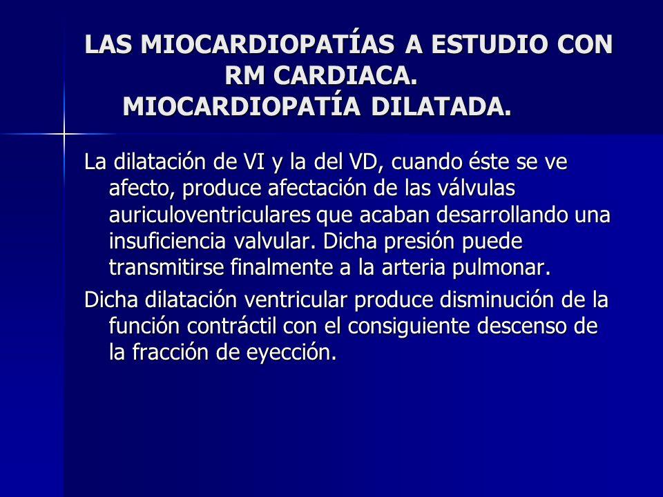 LAS MIOCARDIOPATÍAS A ESTUDIO CON RM CARDIACA. MIOCARDIOPATÍA DILATADA. La dilatación de VI y la del VD, cuando éste se ve afecto, produce afectación