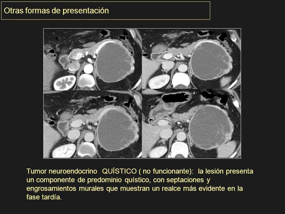 Otras formas de presentación Tumor neuroendocrino QUÍSTICO ( no funcionante): la lesión presenta un componente de predominio quístico, con septaciones