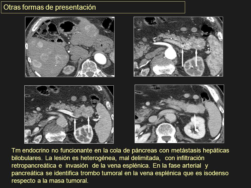 Tm endocrino no funcionante en la cola de páncreas con metástasis hepáticas bilobulares. La lesión es heterogénea, mal delimitada, con infiltración re