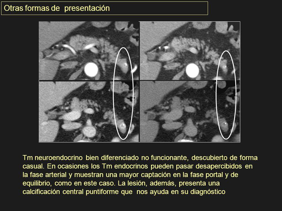 Tm neuroendocrino bien diferenciado no funcionante, descubierto de forma casual. En ocasiones los Tm endocrinos pueden pasar desapercibidos en la fase