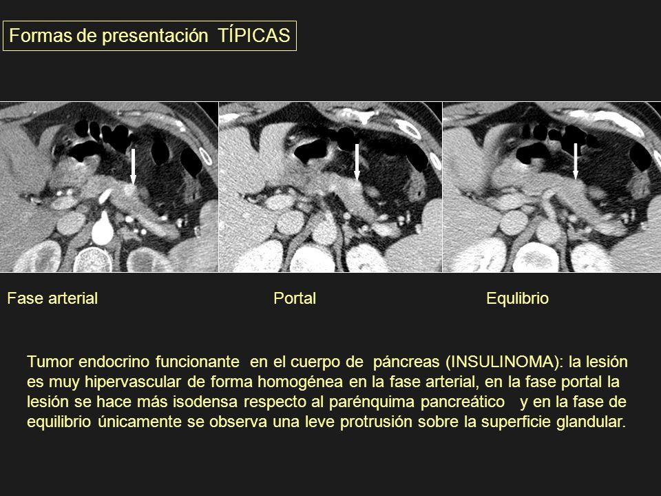 Formas de presentación TÍPICAS Fase arterial Portal Equlibrio Tumor endocrino funcionante en el cuerpo de páncreas (INSULINOMA): la lesión es muy hipe
