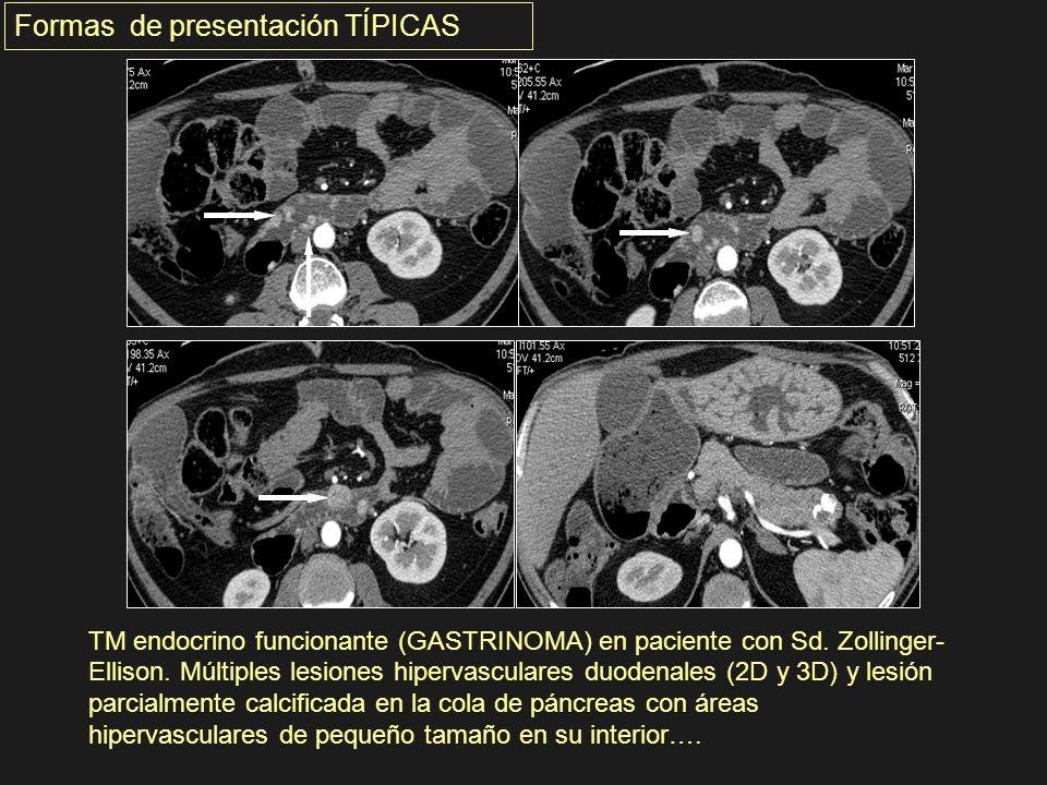 TM endocrino funcionante (GASTRINOMA) en paciente con Sd. Zollinger- Ellison. Múltiples lesiones hipervasculares duodenales (2D y 3D) y lesión parcial