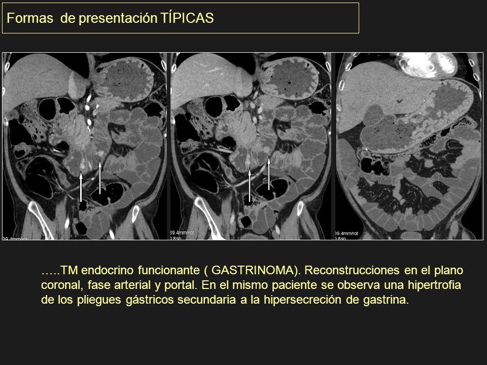…..TM endocrino funcionante ( GASTRINOMA). Reconstrucciones en el plano coronal, fase arterial y portal. En el mismo paciente se observa una hipertrof