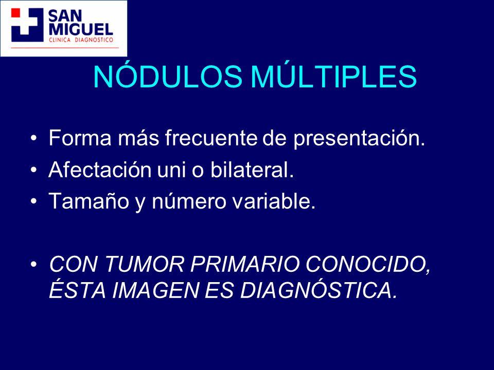 NÓDULOS MÚLTIPLES Forma más frecuente de presentación. Afectación uni o bilateral. Tamaño y número variable. CON TUMOR PRIMARIO CONOCIDO, ÉSTA IMAGEN