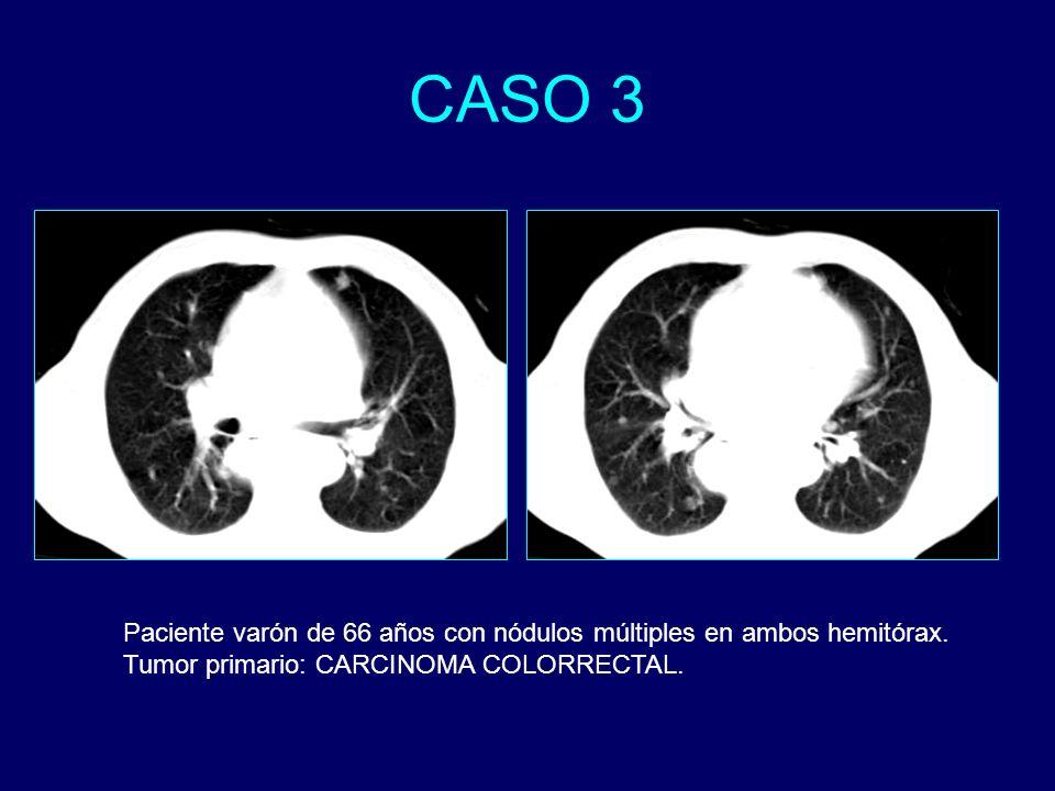 Paciente varón de 66 años con nódulos múltiples en ambos hemitórax. Tumor primario: CARCINOMA COLORRECTAL.