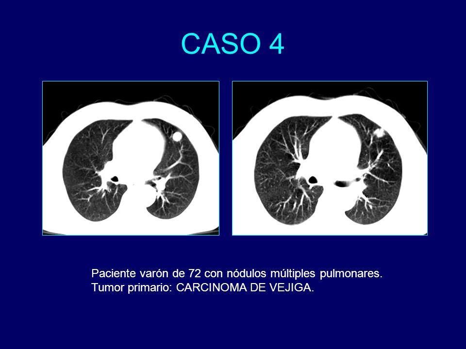 Paciente varón de 72 con nódulos múltiples pulmonares. Tumor primario: CARCINOMA DE VEJIGA.