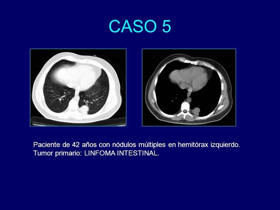 Paciente de 42 años con nódulos múltiples en hemitórax izquierdo. Tumor primario: LINFOMA INTESTINAL.