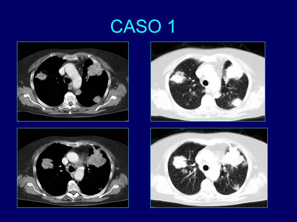 Nódulos pulmonares múltiples distribuidos por ambos hemitórax.