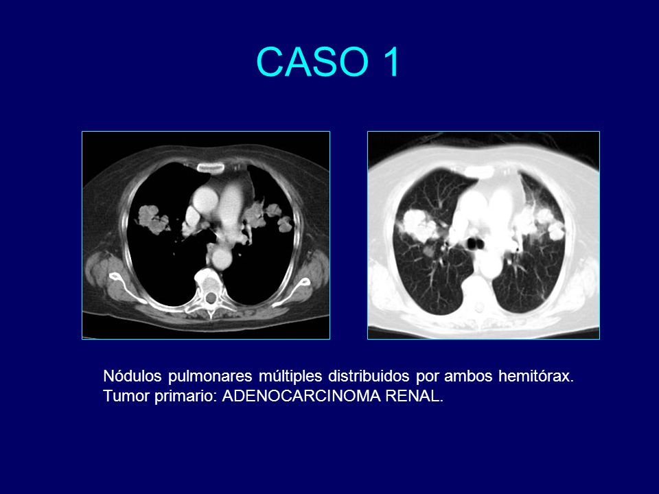 Nódulos pulmonares múltiples distribuidos por ambos hemitórax. Tumor primario: ADENOCARCINOMA RENAL.