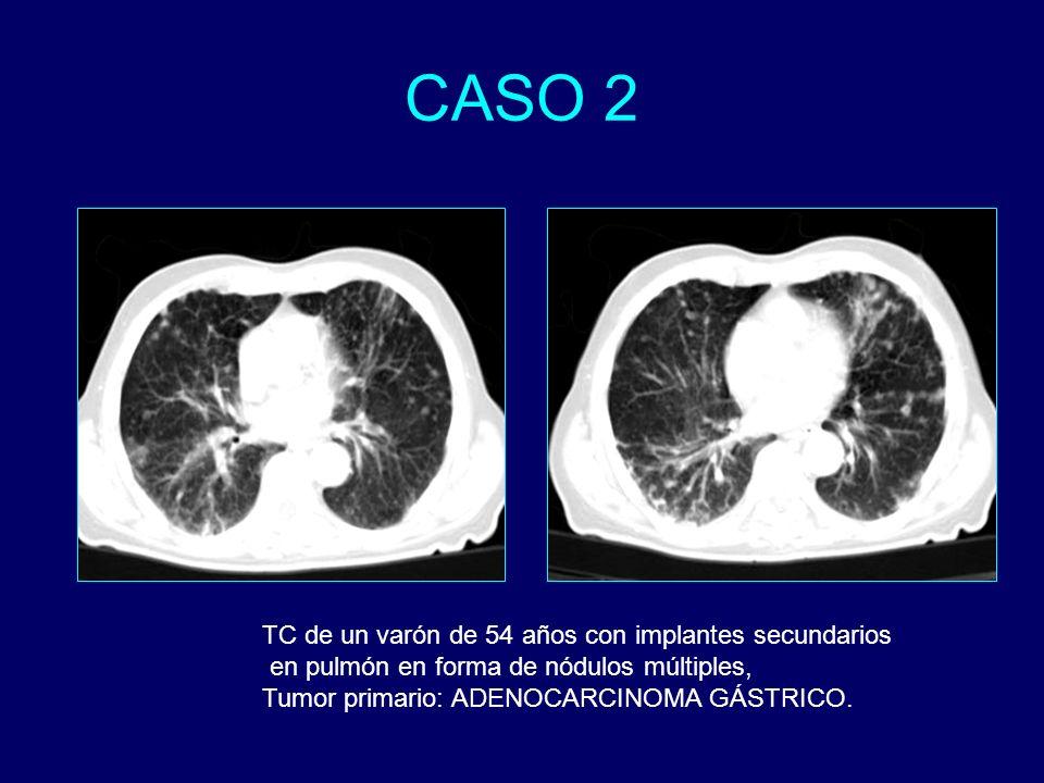 TC de un varón de 54 años con implantes secundarios en pulmón en forma de nódulos múltiples, Tumor primario: ADENOCARCINOMA GÁSTRICO.