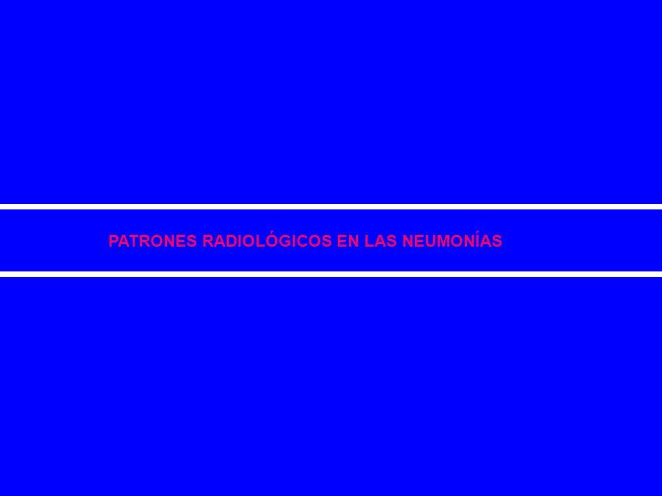 El reconocimiento de patrones radiológicos: Se basa en la categorización de las características radiológicas de la neumonía (tales como forma, tamaño y densidad) en diferentes patrones morfológicos y la correlación de estos patrones con las alteraciones histopatológicas causadas por los diferentes microorganismos.